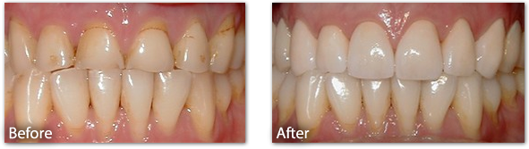 Porcelain Crowns Before & After 2