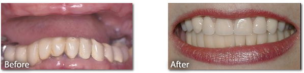 Dental Implant Before & After 2